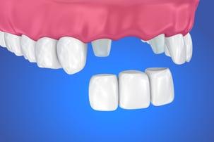dental bridge drawing.jpg